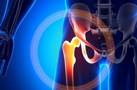 coxartrosi o artrosi dell'anca