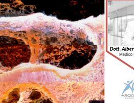 Osteoporosi e morfometria vertebrale