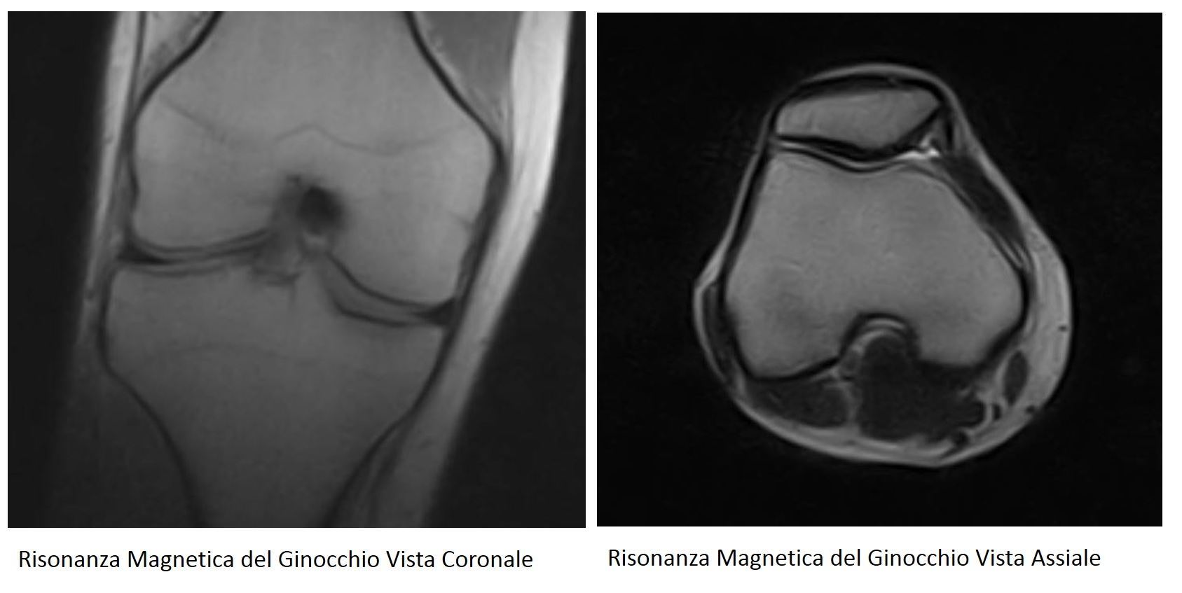 risonanza magnetica del ginocchio